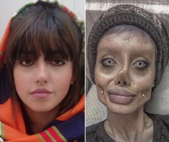 イラン人所女性,サハル・ターバル・BEFORE・AFTER